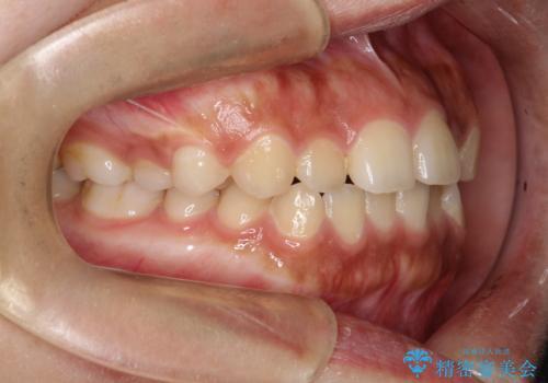 インビザライン 前歯のがたつきを目立たず矯正の治療前