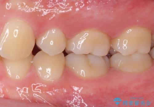 神経近くにまで及んだ大きなむし歯のセラミッククラウンの治療前