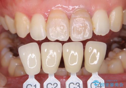 歯を白くしたい‐ウォーキングブリーチで内側から白くの治療前