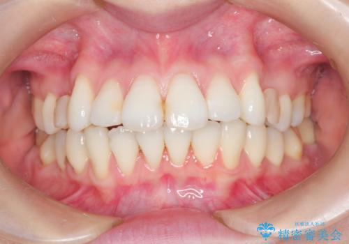 裏側のワイヤー矯正 抜歯して前歯をしっかり後ろに下げるの治療中
