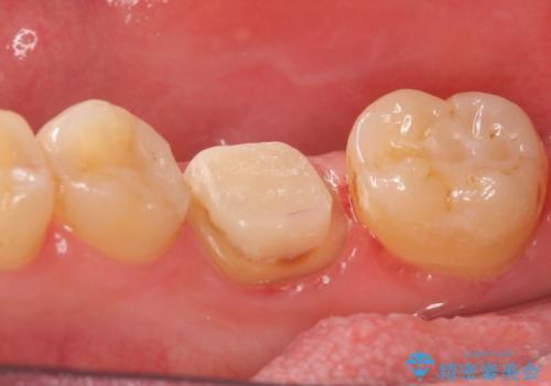 オールセラミッククラウン 鈍い痛みが続く奥歯の治療の治療中