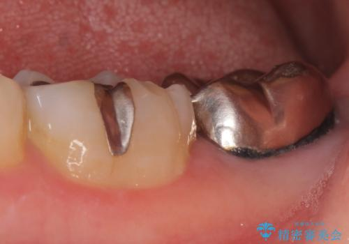 オールセラミッククラウン 咬むと痛む奥歯の治療の治療前