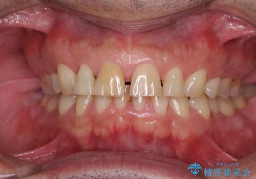 前歯の隙間を閉じたい ラミネートベニアによる審美歯科治療の治療前