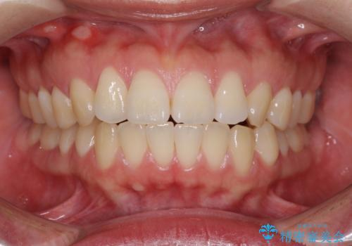 [口ゴボ] 口元が出ているのが気になる ワイヤーによる抜歯矯正で口元をすっきりとの治療前
