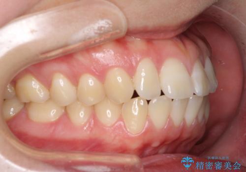 [口ゴボ] 口元が出ているのが気になる ワイヤーによる抜歯矯正で口元をすっきりとの症例 治療前