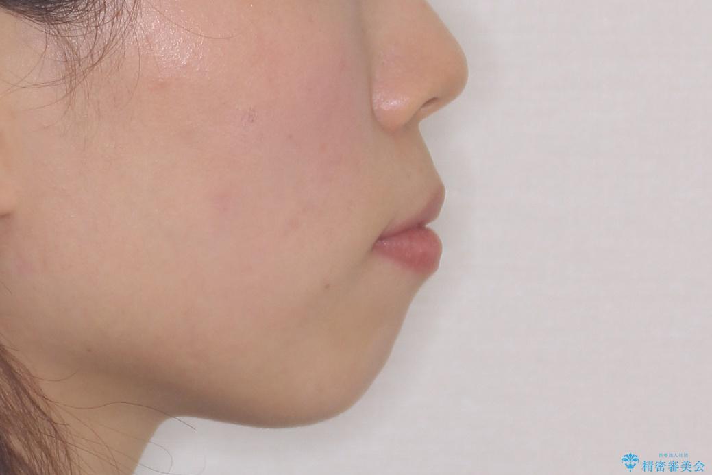 [口ゴボ] 口元が出ているのが気になる ワイヤーによる抜歯矯正で口元をすっきりとの治療前(顔貌)