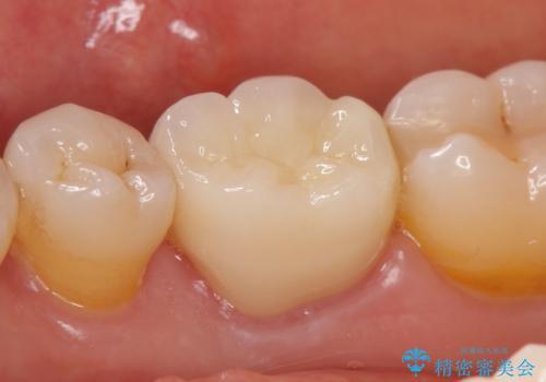オールセラミッククラウン 目立つ銀歯を白い歯への治療後