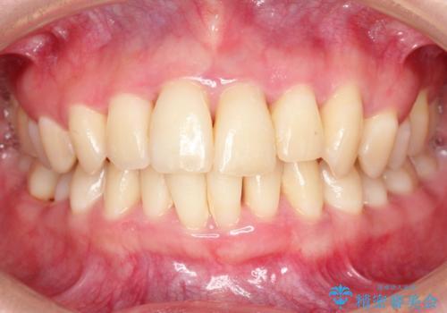 歯槽骨の再生治療の症例 治療前