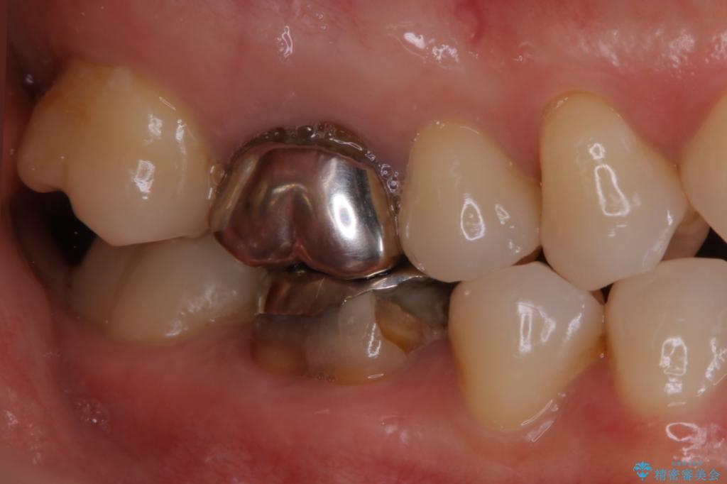 被せ 物 虫歯