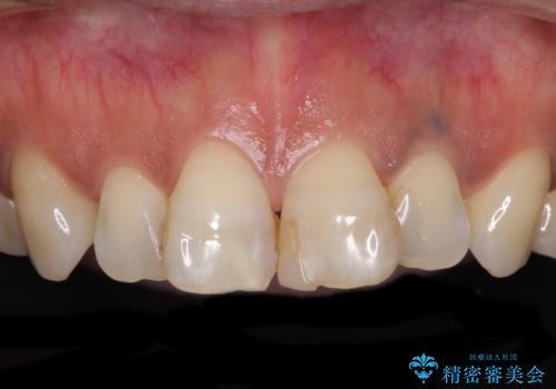 度重なる治療で前歯がしみる オールセラミッククラウンによる補綴治療の治療前