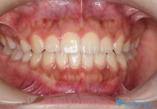 インビザライン 前歯のがたつきを目立たず矯正の症例 治療後