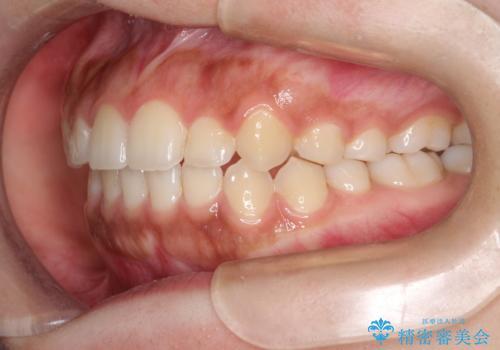 インビザライン 前歯のがたつきを目立たず矯正の治療後