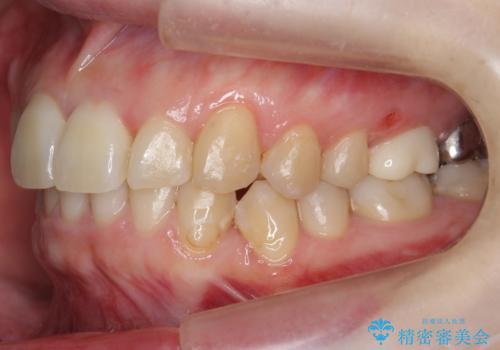 歯並びのがたつきを直したい ワイヤーは嫌 抜きたくないの治療後