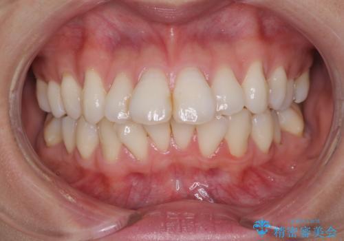 裏側のワイヤー矯正 抜歯して前歯をしっかり後ろに下げるの症例 治療前