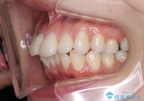 裏側のワイヤー矯正 抜歯して前歯をしっかり後ろに下げるの治療前