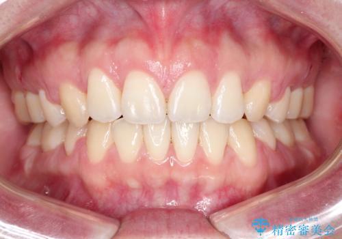[口ゴボ] 口元が出ているのが気になる ワイヤーによる抜歯矯正で口元をすっきりとの治療後