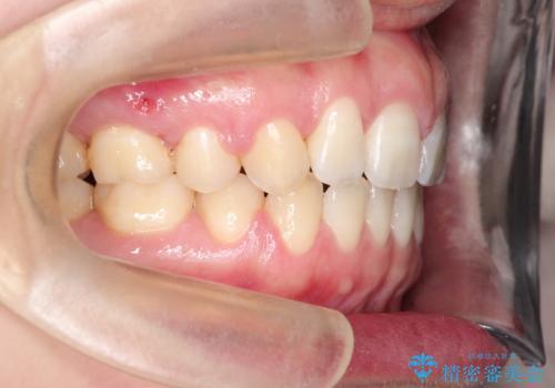 [口ゴボ] 口元が出ているのが気になる ワイヤーによる抜歯矯正で口元をすっきりとの症例 治療後
