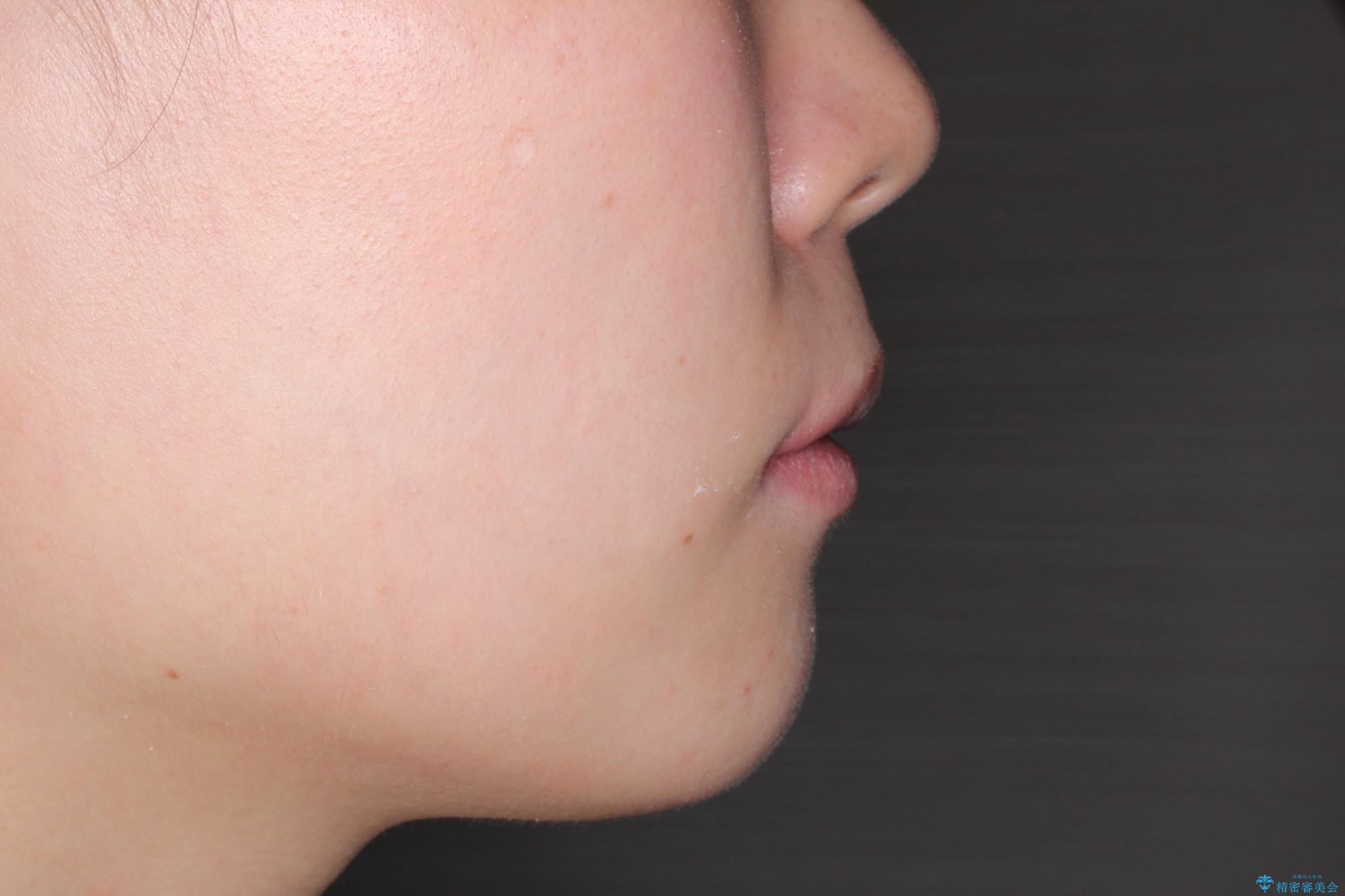 [口ゴボ] 口元が出ているのが気になる ワイヤーによる抜歯矯正で口元をすっきりとの治療後(顔貌)