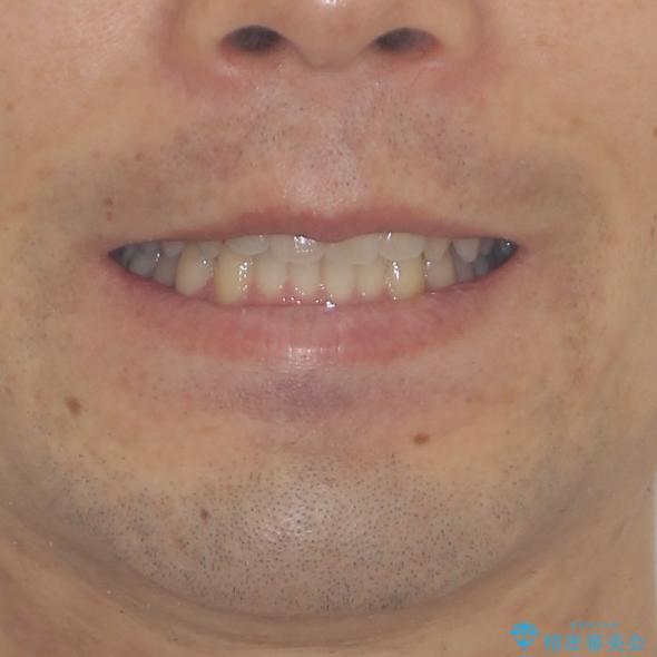 前歯の咬み合わせとデコボコを解消 インビザラインによる矯正治療の治療後(顔貌)