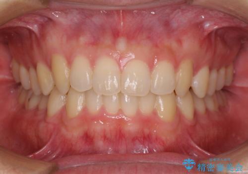 前歯の咬み合わせとデコボコを解消 インビザラインによる矯正治療の治療後