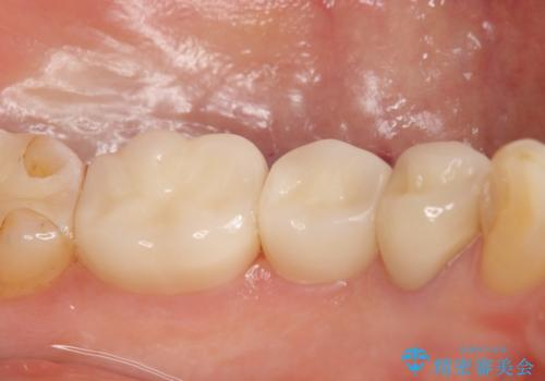 オールセラミッククラウン 奥歯の銀歯を白くの治療後