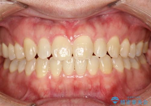 前歯の隙間 インビザラインにて整った歯並びへの症例 治療後