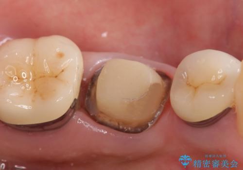 オールセラミッククラウン 痛くて咬めない奥歯の治療の治療中
