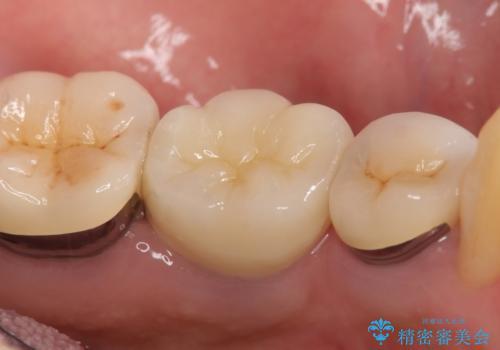 オールセラミッククラウン 痛くて咬めない奥歯の治療の治療後