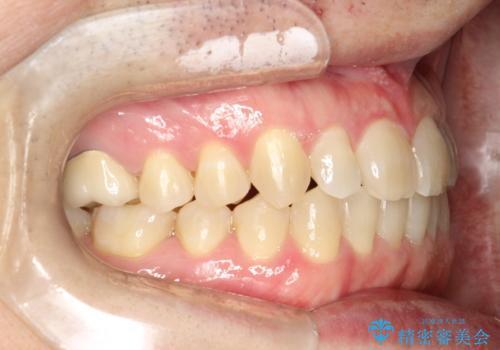前歯の隙間 インビザラインにて整った歯並びへの治療後