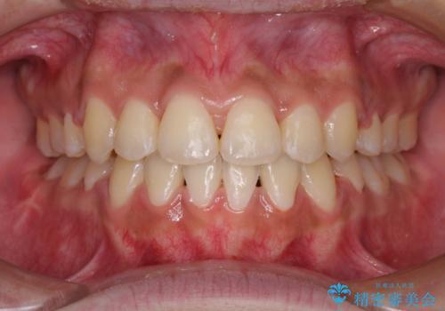 口元をスッキリと ワイヤーでの抜歯矯正の症例 治療後