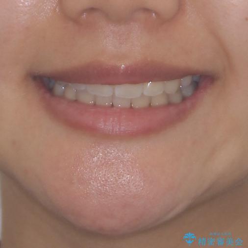 どんなに磨いても汚れが溜まる 抜歯矯正で清潔な口元にの治療後(顔貌)