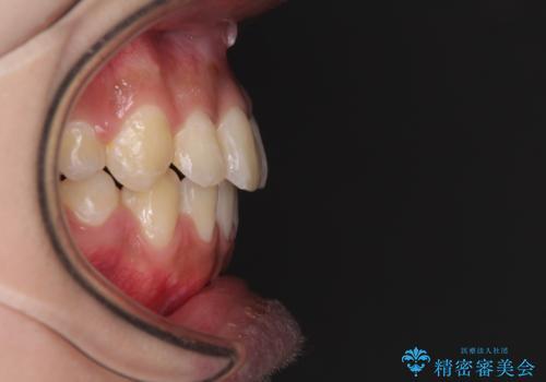 口元をスッキリと ワイヤーでの抜歯矯正の治療後