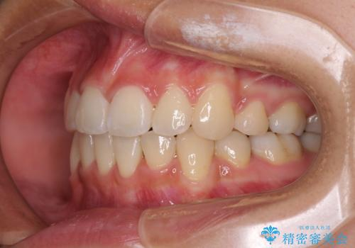 どんなに磨いても汚れが溜まる 抜歯矯正で清潔な口元にの治療後