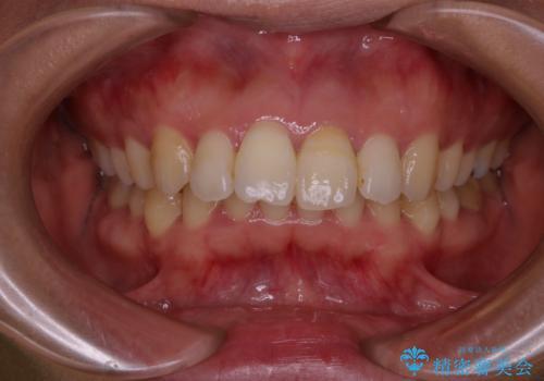 歯を白くしたい‐ウォーキングブリーチで内側から白くの治療中