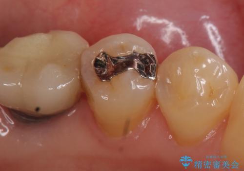 セラミックインレー 気になる銀歯を白くの治療前