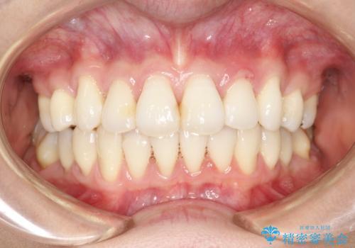 裏側のワイヤー矯正 抜歯して前歯をしっかり後ろに下げるの症例 治療後