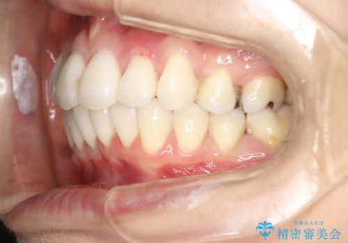 裏側のワイヤー矯正 抜歯して前歯をしっかり後ろに下げるの治療後