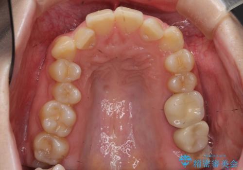 歯並びのがたつきを直したい ワイヤーは嫌 抜きたくないの治療前