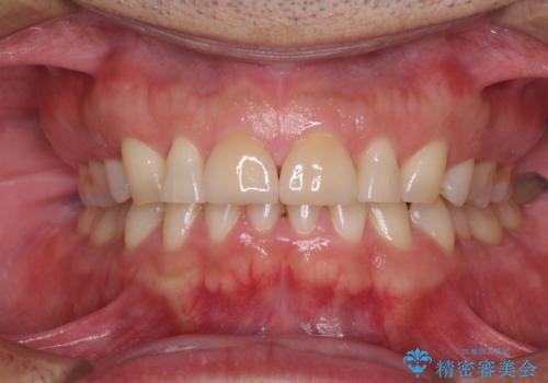 前歯の隙間を閉じたい ラミネートベニアによる審美歯科治療の治療後