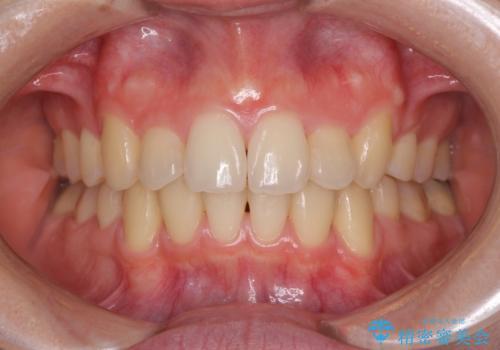 気になる八重歯を治したい ワイヤー装置での抜歯矯正の治療後