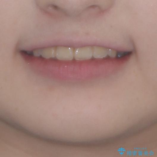 前歯をきれいに整えたい ワイヤー装置での非抜歯矯正の治療後(顔貌)