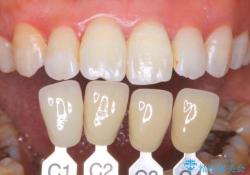 歯を白くしたい‐ウォーキングブリーチで内側から白くの治療後