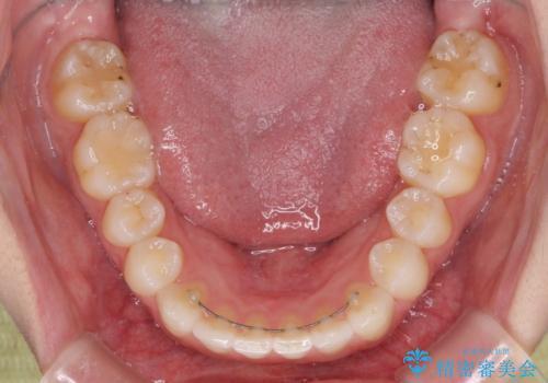 前歯のクロスバイトをインビザライン矯正で改善の治療後
