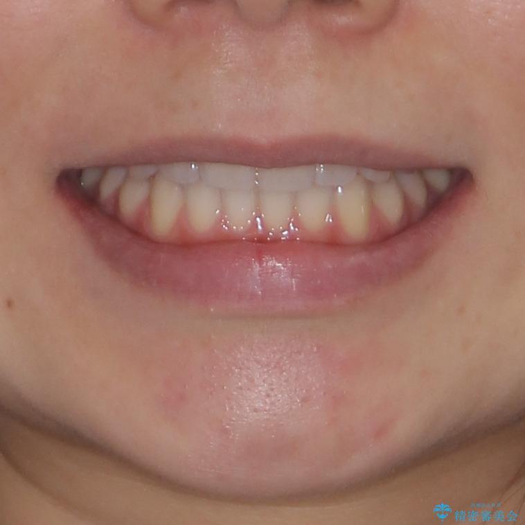 前歯のクロスバイトをインビザライン矯正で改善の治療後(顔貌)