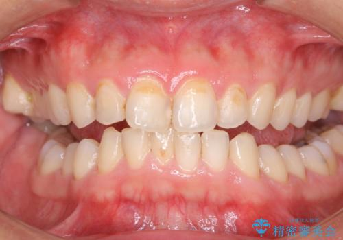 30年ぶりに歯科医院へ来院の治療前