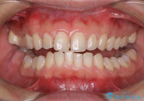 30年ぶりに歯科医院へ来院の治療後