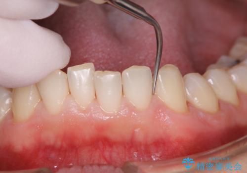 30年ぶりに歯科医院へ来院の治療中