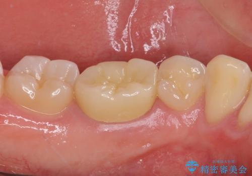 神経近くにまで及んだ大きなむし歯のセラミッククラウンの治療後