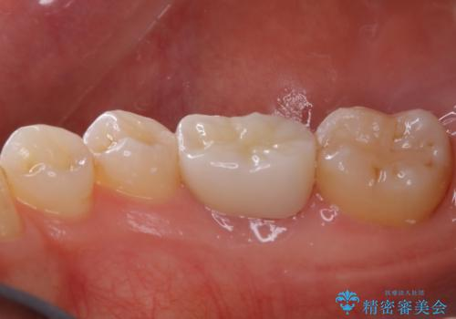 被せ物の下で進行してしまった虫歯の治療の治療後