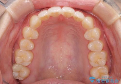 前歯のデコボコと突出感 インビザラインで改善の治療後